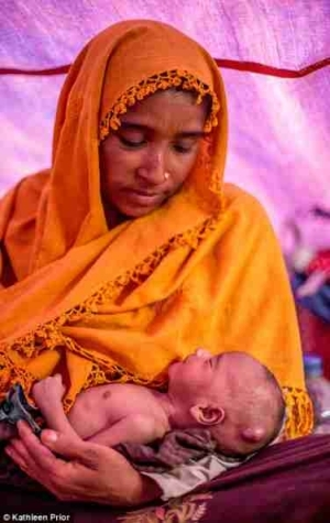 Horror: This Woman Was Forced to Run for Her Life Just Moments After Giving Birth as Gunmen Invaded Her Village (Photos)